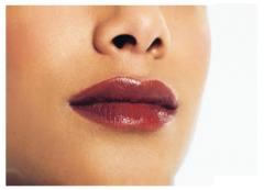 Aumento de labios con prótesis